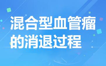 上海血管瘤哪个医院比较好:混合型血管瘤的消退过程
