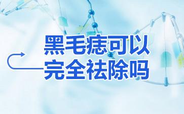 上海做胎记医院哪家好:黑毛痣可以完全祛除吗