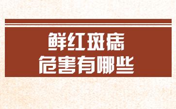 上海胎记治疗医院排名公立:鲜红斑痣的危害有哪些