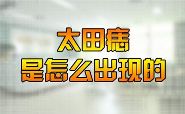 上海好的胎记医院:太田痣是怎么出现的