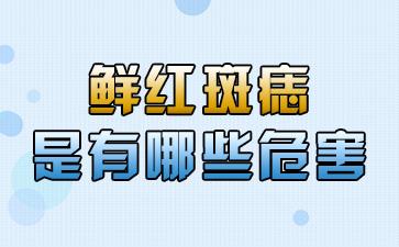 上海看胎记公立医院:鲜红斑痣是有哪些危害