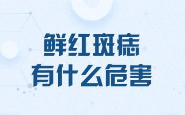 上海做胎记手术哪家医院好:鲜红斑痣有什么危害
