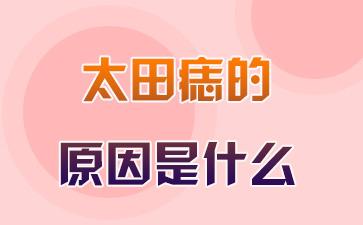上海去除胎记医院哪家好:太田痣的原因是什么