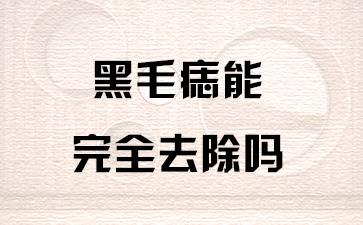 上海去胎记哪家医院好:黑毛痣能完全去除吗