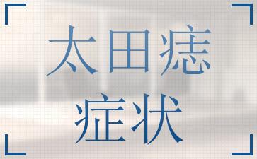 太田痣有哪些常见到的症状呢